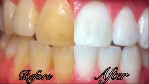 Home Remedies For Whiter Teeth In A Week